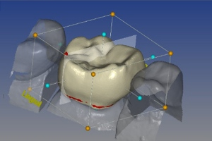 3d imaging and printing for dentistry