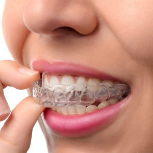 Invisalign Fairfield CA